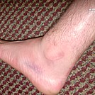 Dragon tooth sprain/ HOJO by Forrest'10 in Thru - Hikers